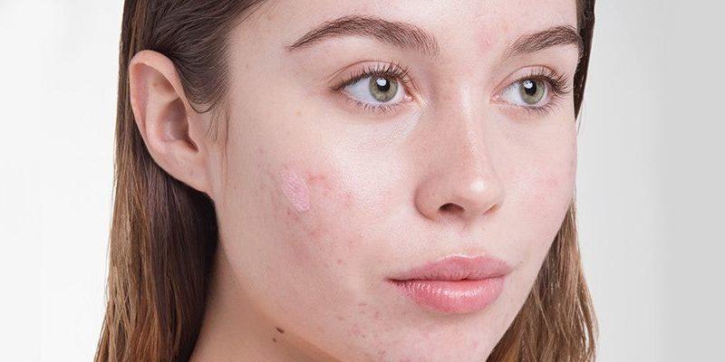 Comment se débarrasser de l'acné ?