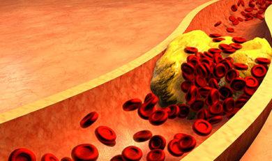 Cholestérol et maladies cardiovasculaires