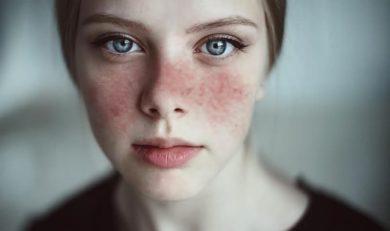 quelle maladie est le lupus