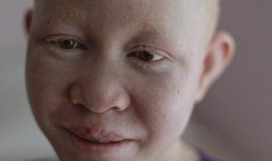 etre albinos