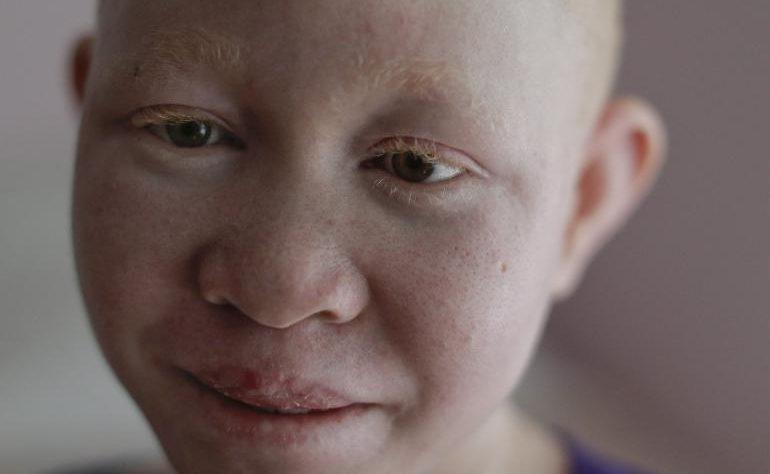 Ça veut dire quoi être albinos ? - Maladies de peau