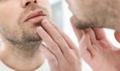 qu'est ce que l'herpes ?