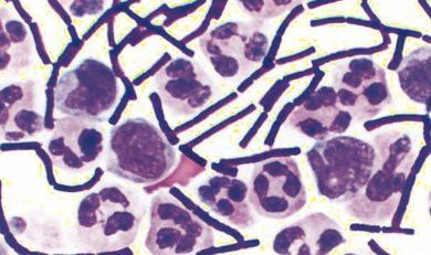 traitement anthrax