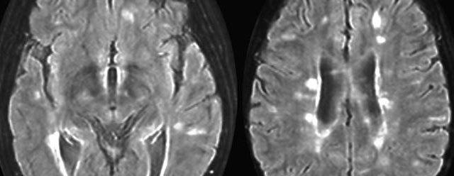 sclerose en plaque