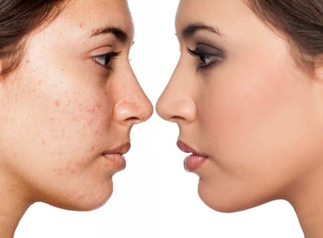Soigner l'acne