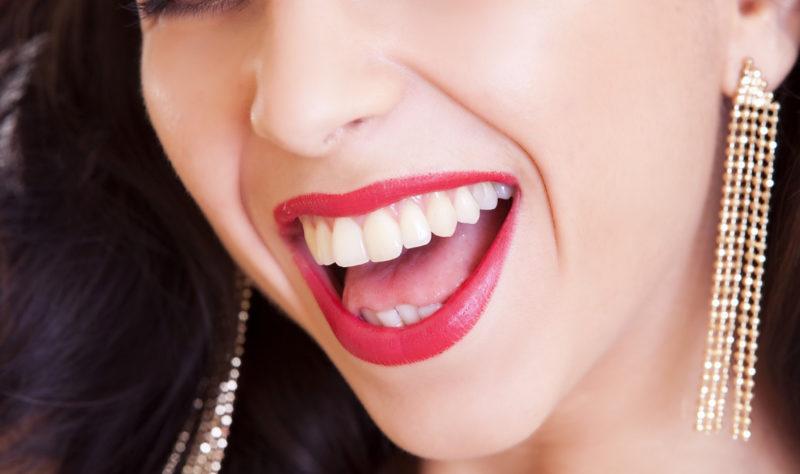 blanchiment dents