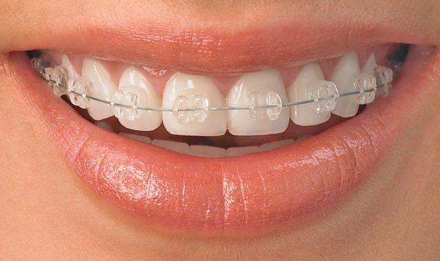 remboursement orthodontie