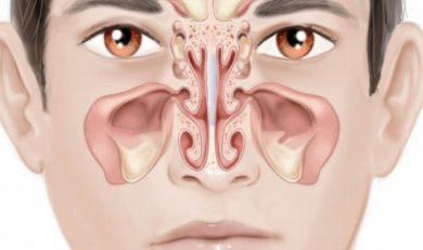 rhume ou sinusite ?