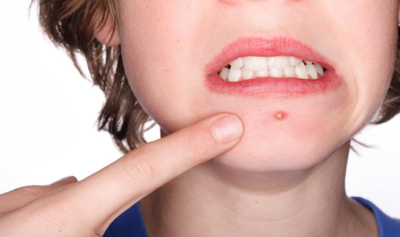 acne juvenile comment traiter