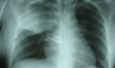 pneumonie